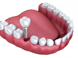 Melbourne Dental Implants